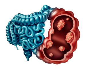 Causes of Colon Cancer Myths: Causes, Part 1/2